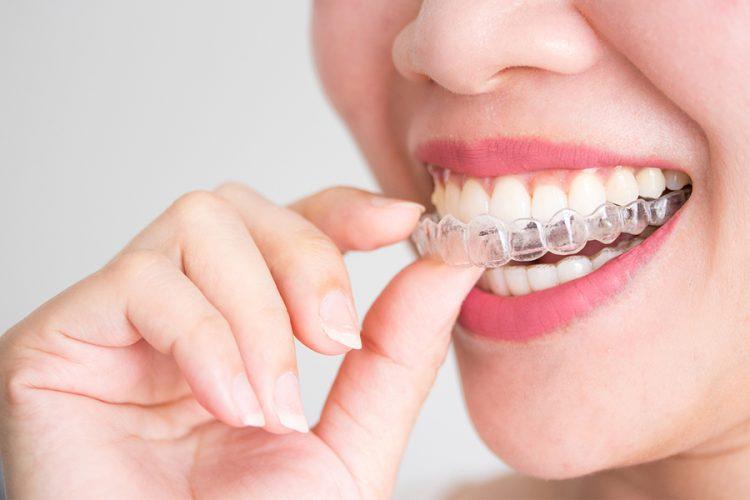 ortodoncia invisble