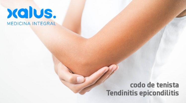 tendinitis epicondilitis